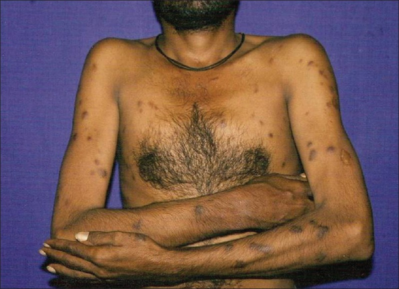 Figure 1: Violaceous papulonodular lesions over the trunk and upper limbs