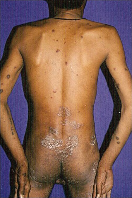 Figure 2: Violaceous papulonodular lesions over the back with tinea corporis