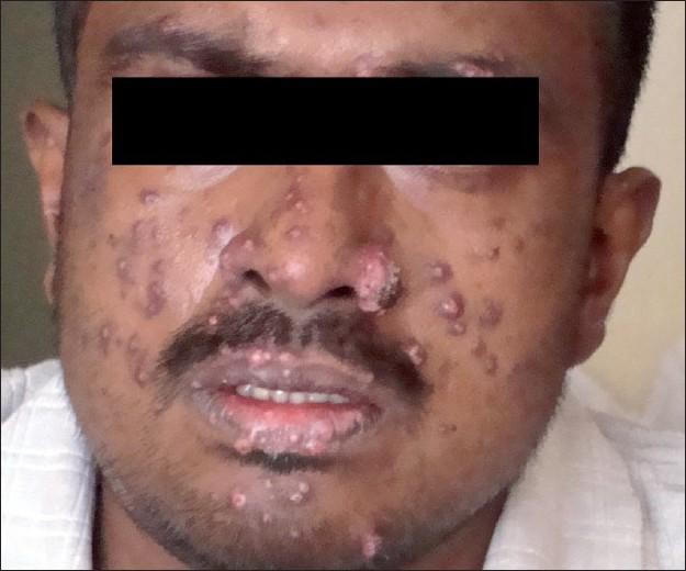 Aids Lesions Pictures Face