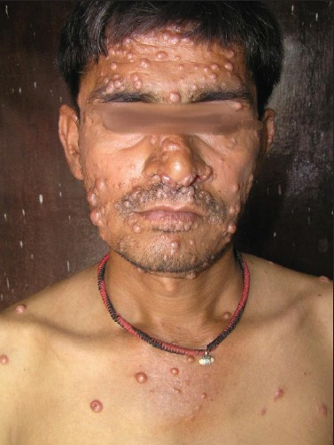 Aids Lesions Pictures Face