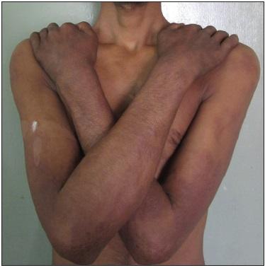 Figure 1 Clinical photograph Type 2 Lepra Reaction