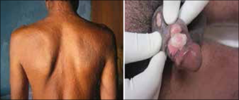 Figure 1: Roseolar rash of secondary syphilis (left) and condylomata lata on penis in an human immunodeficiency virus-positive patient (right)