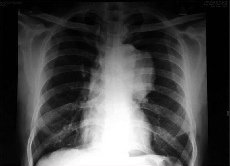 Figure 1: Chest X-ray: Aneurysm of arch of aorta