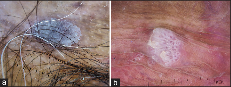 Figure 2: (a) Dermatoscopy of vestibular papillomatosis, translucent white papillomatous projections with vascular core. Bases of the individual papillae remain separate (DermLite-DL3N, ×10) (b) Dermatoscopy of genital warts, multiple irregular projections with tapering ends, which are less transparent and broader than vestibular papillomatosis. The papillary projections arise from a common base (DermLite-DL3N, ×10)