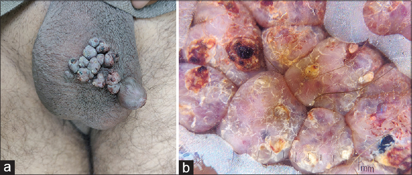 Figure 7: (a) Multiple well-defined, skin-colored-to-bluish nodular lesions of angiokeratoma over the scrotum. (b) Dermatoscopy shows reddish blue lacunae within the nodules. Scaling and hemorrhage are also seen (DermLite-DL3N, ×10)