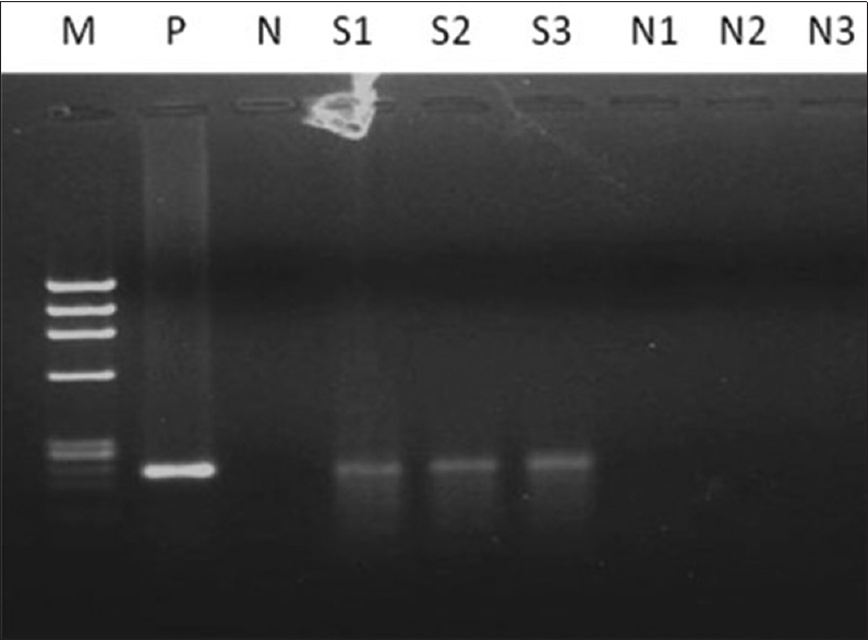 Figure 4: Two percent agarose gel showing the amplification of human papillomavirus 16 of 217 bp; Lane M: Ф×174 DNA/Hae III digested marker, Lane P: Positive control; Lane N: Negative control; Lane S1 to S3: Cancer samples; Lane N1 to N3: Normal samples