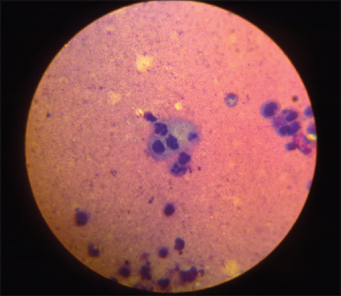 Figure 3: Tzanck smear preparation showing multinucleated giant cells