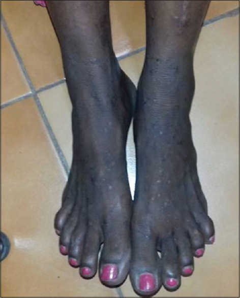 Figure 2: Papules over lower limbs in a Grade I pruritic papular eruption patient