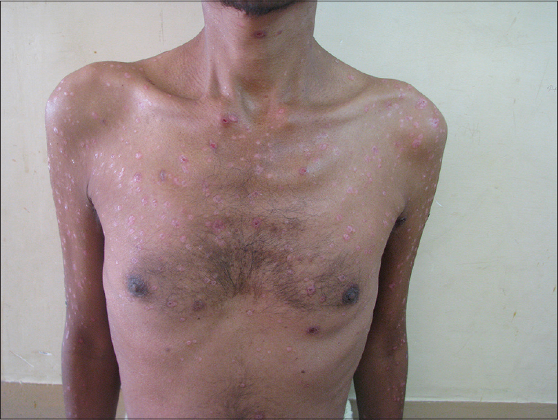 Figure 2: Clinical photograph from patient 2 showing multiple umbilicated papules over the trunk