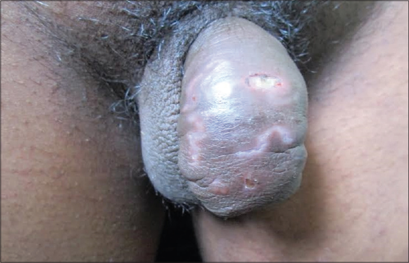 Figure 5: Penile edema with burrows of scabies